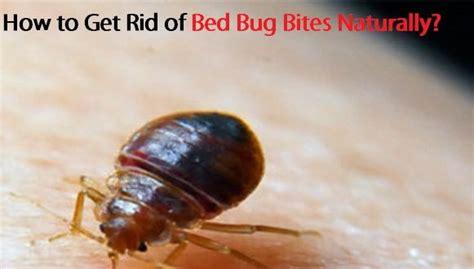rid  bed bug bites naturally