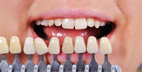 tooth color chart crown ouflage shade taking considerations for the