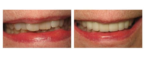 Comfort Smile Dental by Cosmetic Dentist Lakewood Ohio Smile Gallery Comfort