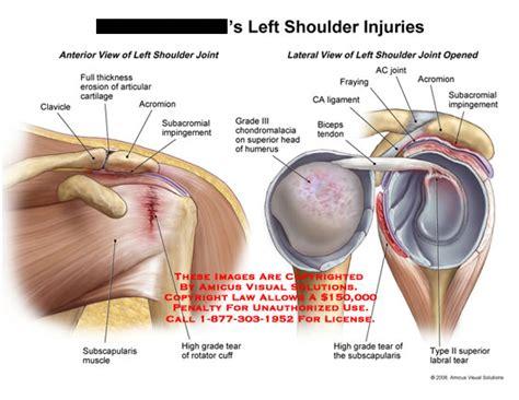 torn rotator cuff diagram amicus illustration of amicus injury shoulder rotator cuff