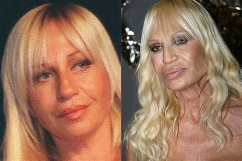 Donatella Versace Tells Clinton To Take by Do Really Look Better After Plastic Surgery To