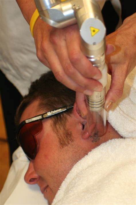 laser tattoo removal training courses laser removal removal nli