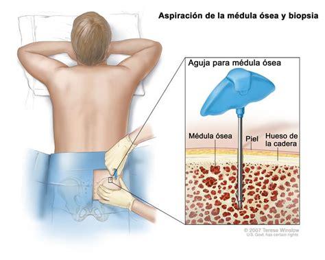 enfermedad de cadenas ligeras pdf neoplasias de c 233 lulas plasm 225 ticas incluso mieloma