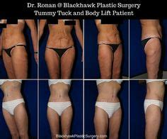 contouring following bariatric surgery and weight loss post bariatric contouring books pin by anu yew on liposuction