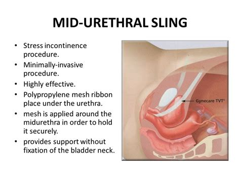 bladder swing an approach to urinary incontinence in primary care ppt