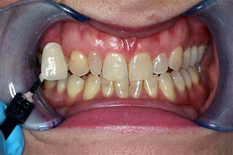 healthy teeth whitening  patients