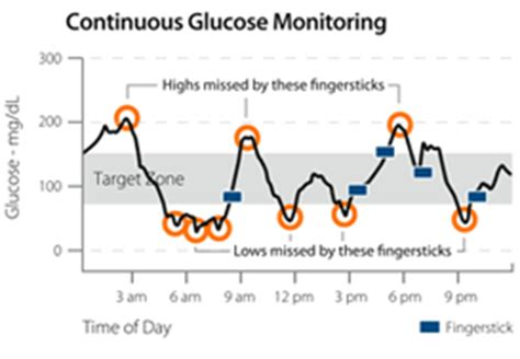 insulin pumps and continuous glucose monitoring books a diabetic product review for non diabetics the