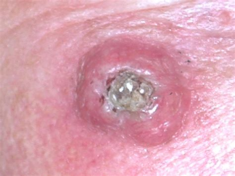 types of cancer pictures what is skin cancer and what are different types of skin cancer