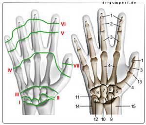 schmerzen in der handfläche handgelenk schmerzen