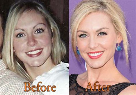 jessica robertson surgery jessica robertson plastic surgery before and after botox