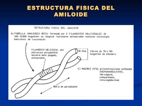 enfermedad de cadenas ligeras pdf amiloidosis renal