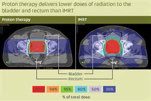 Proton Therapy For Brain Cancer Image Gallery Imrt Cancer