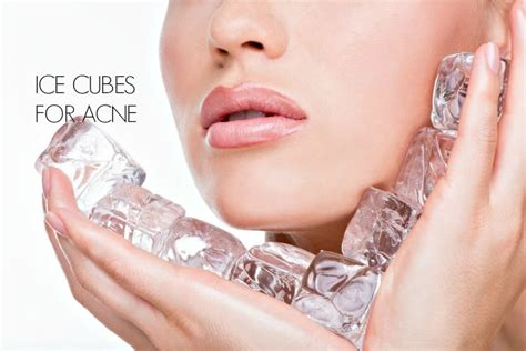 icy hot really work ice cubes for pimples 9 effective ways to treat acne