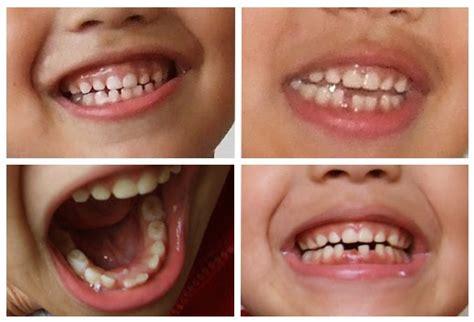 imagenes dientes temporales seccion13odontologiacomunitaria tipos de dientes y