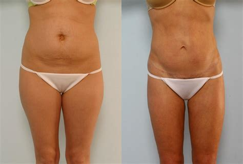 nhs tummy tuck after c section 52 will insurance pay for tummy tuck after c section