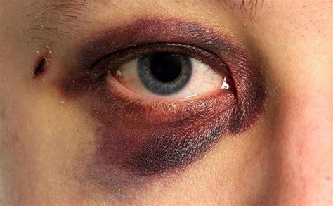 black eyes black eye bruise makeup makeupmorgue pinterest