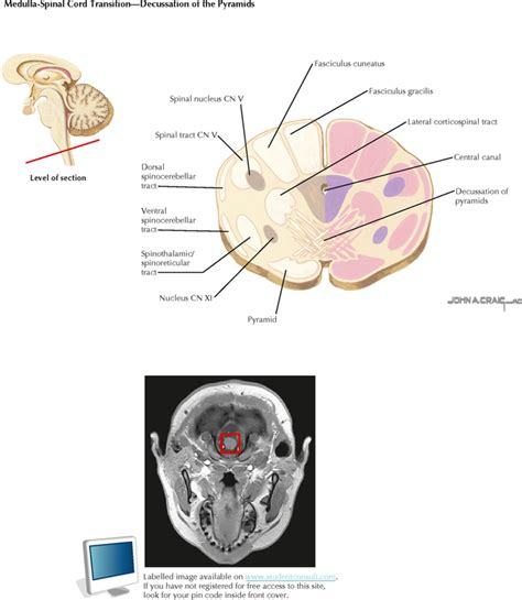 brain stem cross section brain stem cross sections 28 images cross section of