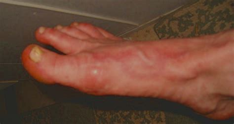 Parasite Detox Rash by A Foot Rash On Curezone Image Gallery