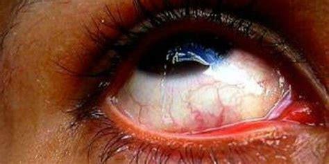 orzaiolo interno occhio orzaiolo cause e rimedi naturali efficaci roba da donne