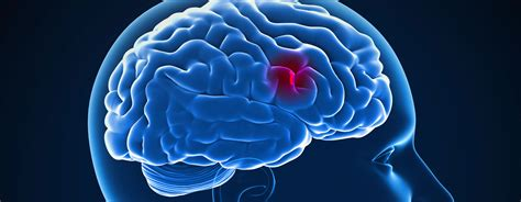 a stroke signs and symptoms of a stroke st ambulance alberta