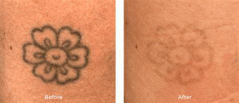 tattoo removal miami miami center for dermatology cosmetic dermatology laser