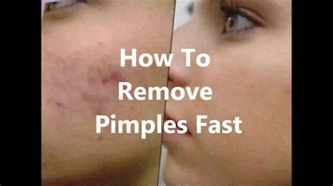 How To Remove A Blind Pimple home remedies for bumps