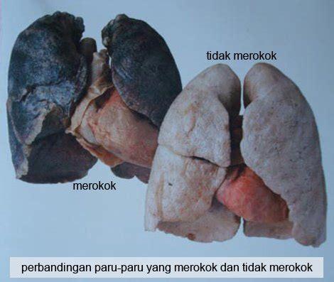 sakit kanker paru paru images