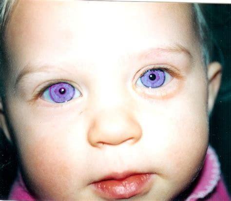purple eye color violet a genetic mutation called alexandria s genesis whoops alexandria s genesis