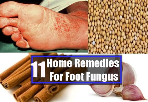 foot fungus home remedies treatments and cure