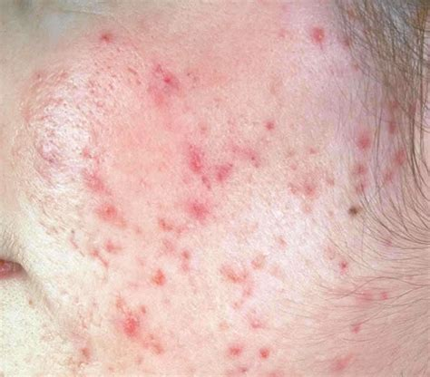 spots on skin brown liver spots on the skin hairstyles