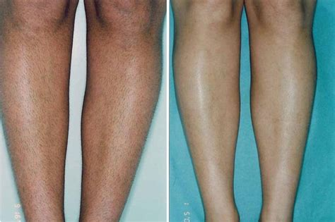 hair removal for legs laser hair removal eyelash canada