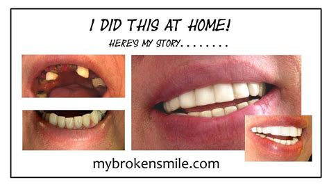 fix a missing or broken tooth at home remedy
