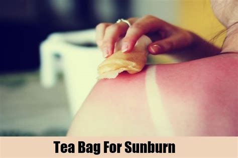 Does A Shower Help A Sunburn by The Magic Of Your Used Tea Bags Viralportal