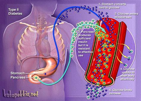 glucosio alimentare diabete alimentare ecco