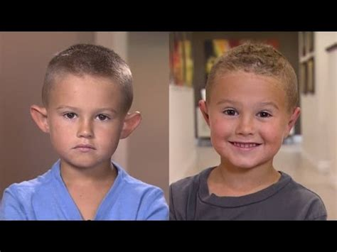 big ears in boys parents allow 6 year old boy with big ears to get plastic
