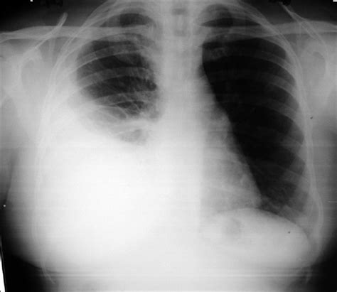 sle chest x report lung and lupus vulgaris mukta v jayachandran k lung india