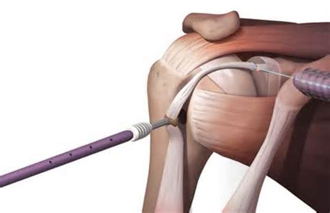 biceps tenodesis recovery table biceps tenodesis ecza solinf co