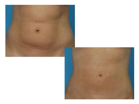 lypo section tickle lipo justice coupon code