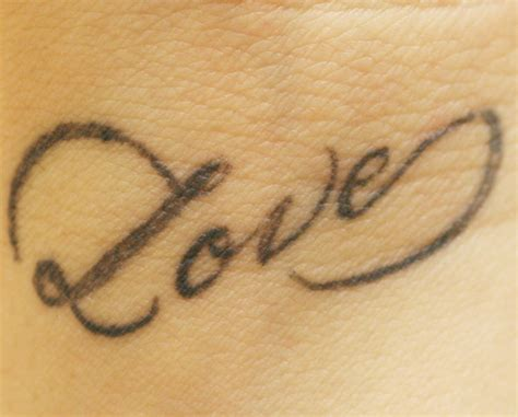 guaranteed tattoo removal before removal treatments laser removal