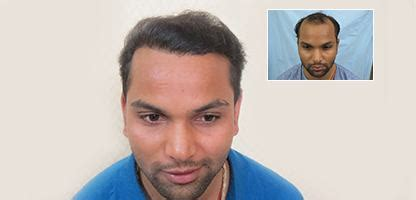 best hairtransplant in the world best hair transplant clinic in pune for natural