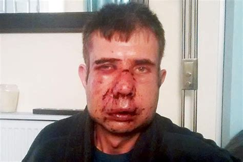 badly boy thief attacked in lancashire thief kicked his like a