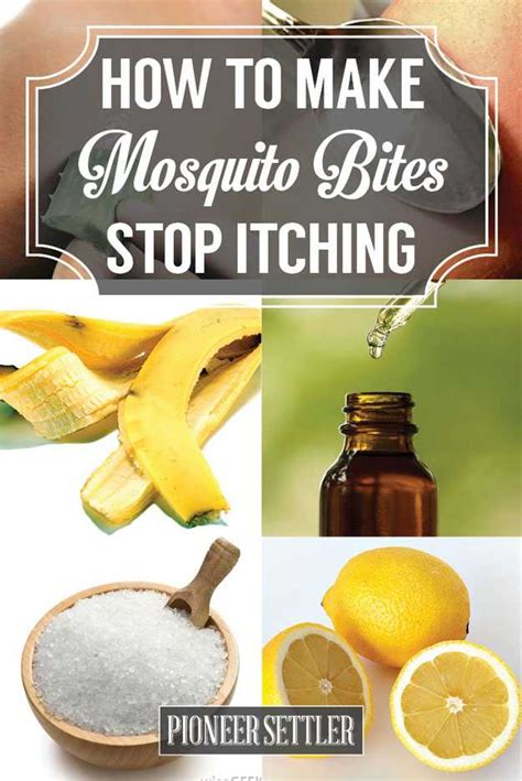 how to stop itching make mosquito bites stop itching with these 15 tricks home remedies