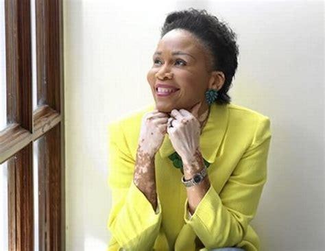 what happened to laleti khumalos skin quot vitiligo does not define who i am quot leleti khumalo