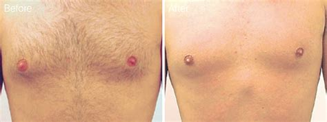 brazilian hair removal pics male brazilian laser hair removal cost quality hair