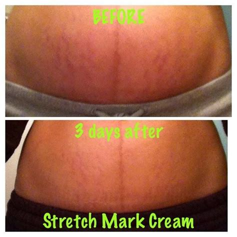 Detox For Stretch Marks by 86 Best Images About Www Shapemeslim Myitworks On