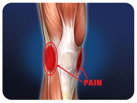 torn acl symptoms 25 best ideas about acl tear symptoms on aching knees symptoms of torn