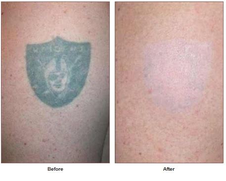 tattoo removal santa rosa removal laser skin care santa rosa artemedica