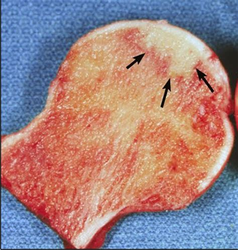 necrosi testa femore sintomi ortopedia web necrosi asettica testa femore sintomi