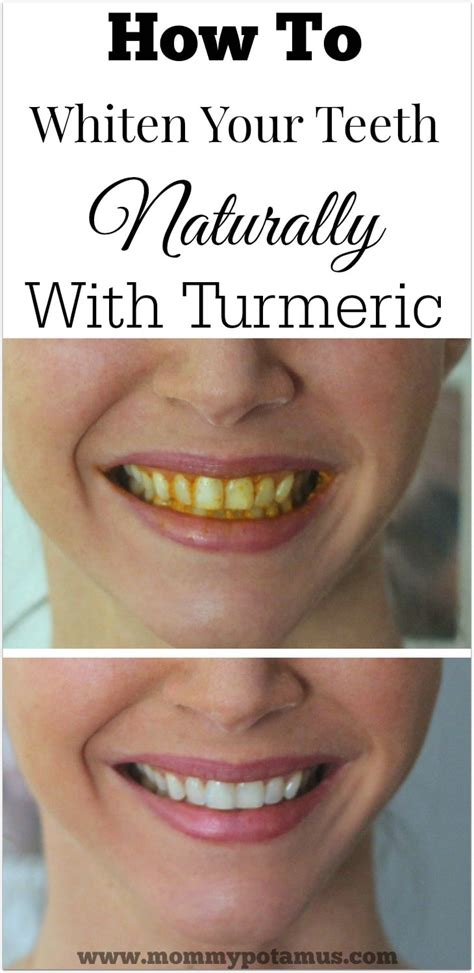 How To Clean Your System Of Fast Without Detox by Turmeric Teeth Whitening At Home