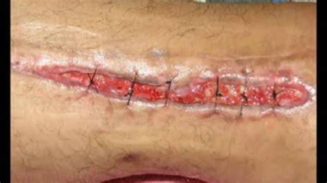 imagenes o videos de una cesarea dehiscencia 2 youtube